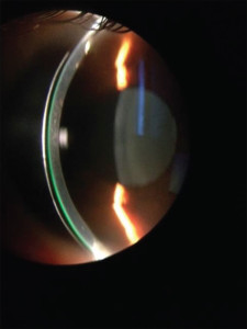 Figure 3. shows an optic section being used to evaluate and measure contact tear film clearance on a smaller mini-scleral lens. The thickness of the contact lens is 280 microns and in comparison, the tear film is approximately 150 microns.