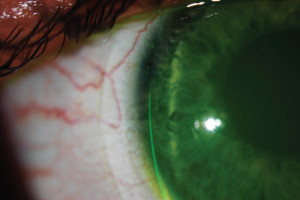 Figure 4. depicts an appropriate diameter on a normal eye, usually around 14.9 millimeters. Photo Courtesy to Blanchard Contact Lens, Inc.
